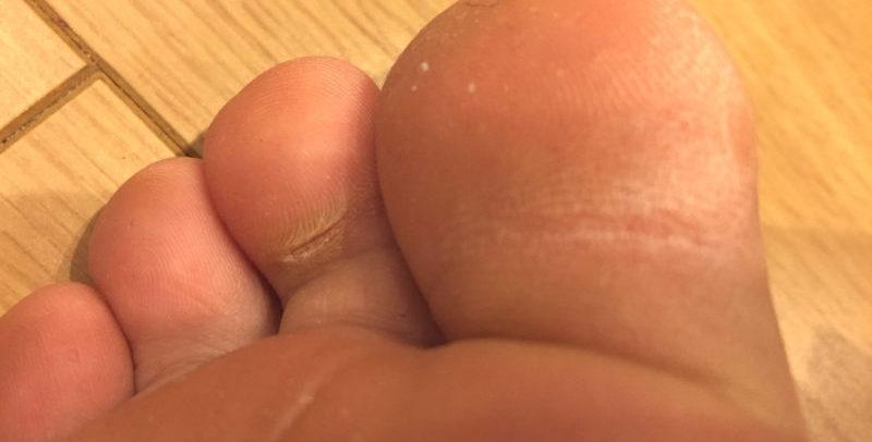 足指の角質